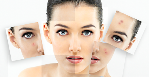 How to get rid of inflammatory acne
